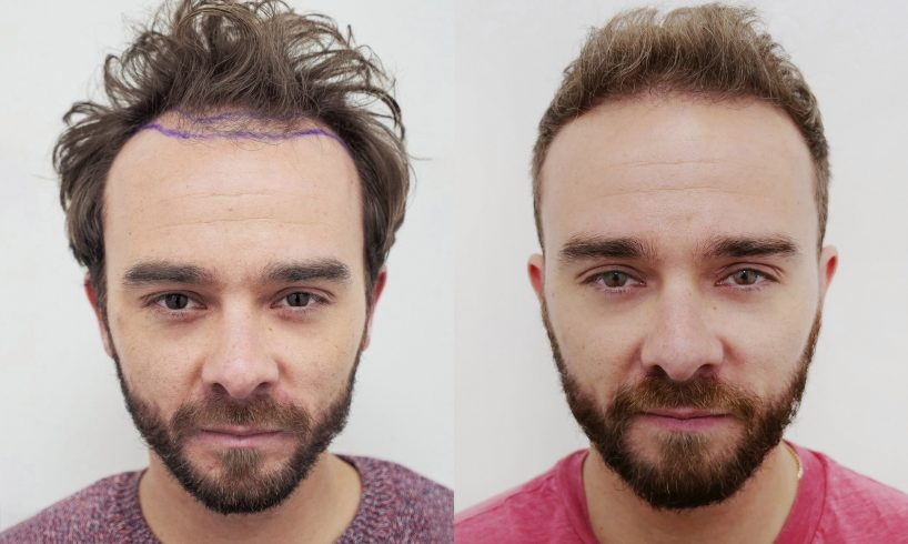 low cost hair transplant
